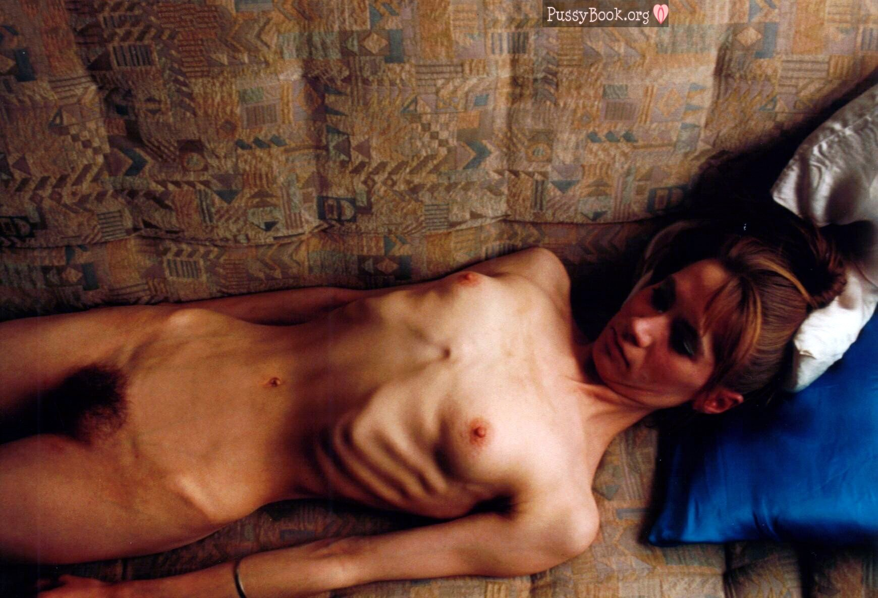 Hairy mature anorexic