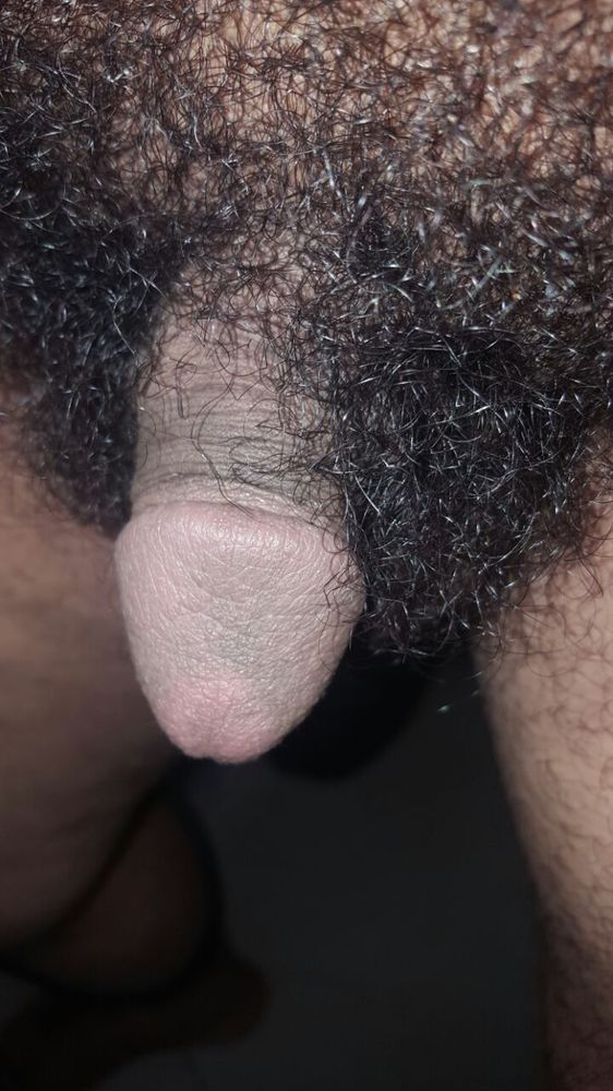 Photos of hairy penis
